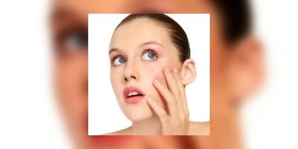 middel tegen acne volwassenen